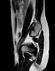 Une photo de mon IRM
